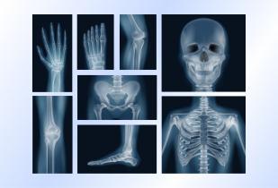X-Ray & Radiology Films